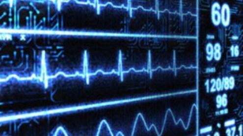 Kardiograma. iStockPhoto nuotr.