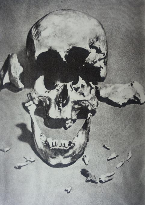"""K. Donelaičio kaukolė prieš restauravimą (nuotr. iš knygelės ,,Kristijono Donelaičio palaikų tyrinėjimo medžiaga"""")"""