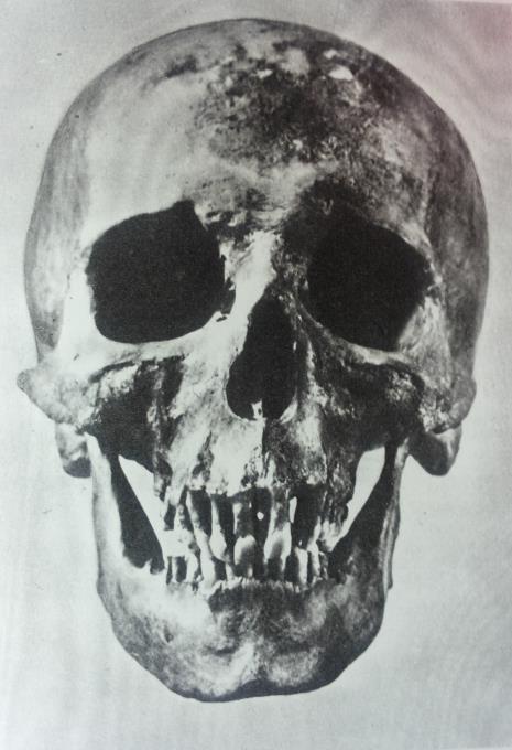 """Restauruota kaukolė iš priekio (nuotr. iš knygelės ,,Kristijono Donelaičio palaikų tyrinėjimo medžiaga"""")"""